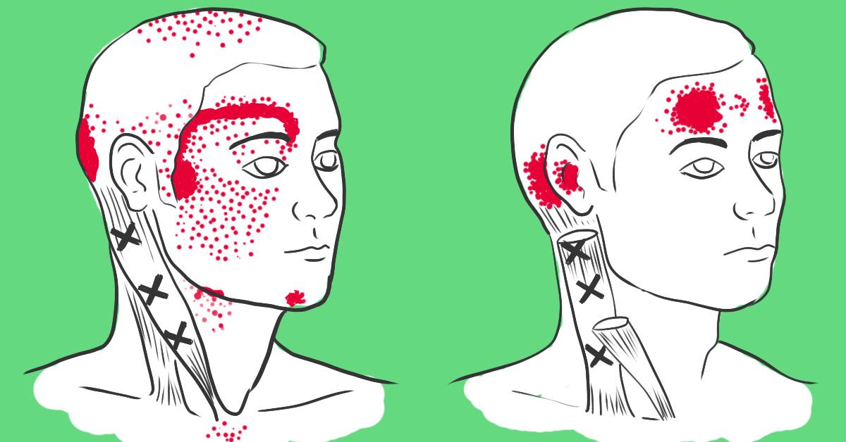 Что делать если сейчас мигрень